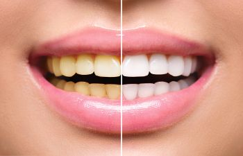 Woman Smiling Before and After Teeth Whitening Lawrenceville GA